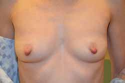 Before and After Breast Augmentation Valparaiso, IN
