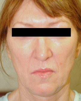 Patient # 19536 Before Photo # 1